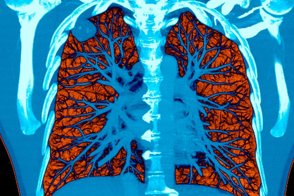 Artificial Intelligence detecting lung cancer